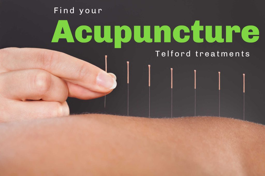 Acupuncture services in telford