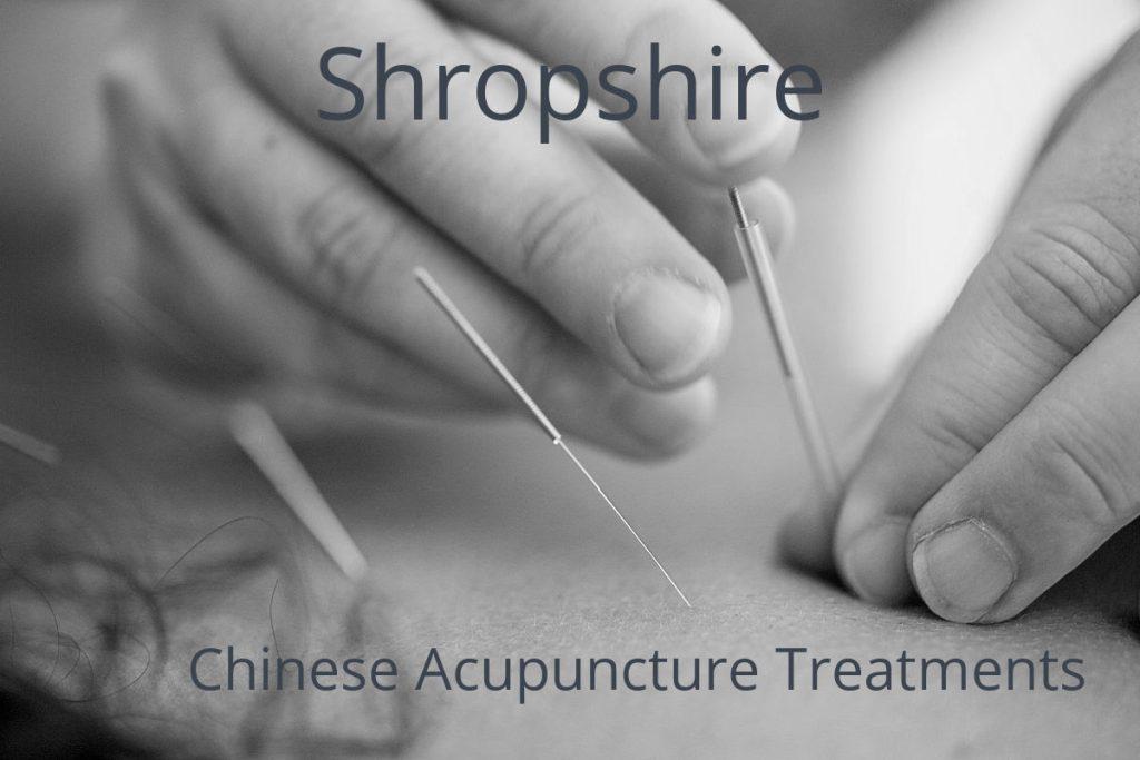 liz collins acupuncture