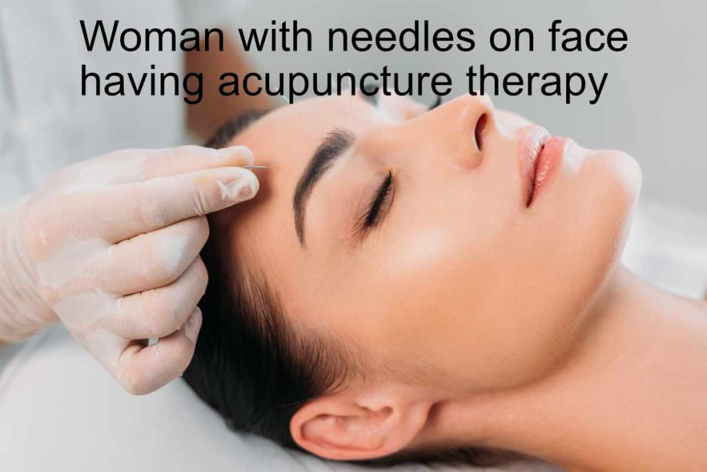 greenrose acupuncture