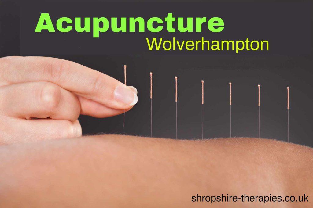 acupuncturist wolverhampton area